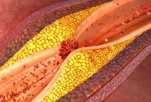 Zakrzepica i Miażdżyca: 5 sygnałów ostrzegawczych, że masz zatkane tętnice i żyły.